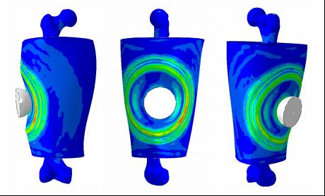 スポーツ物理学 - シミュレーションによるスポーツ傷害の予測と保護具の設計